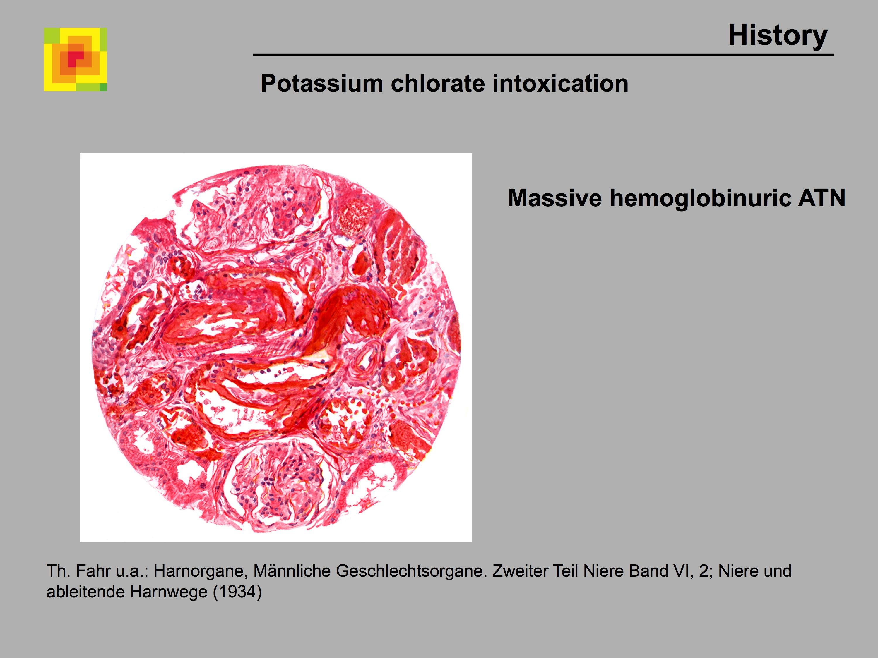 nephrotox - Historical perspective of iatrogenic, drug-induced ...